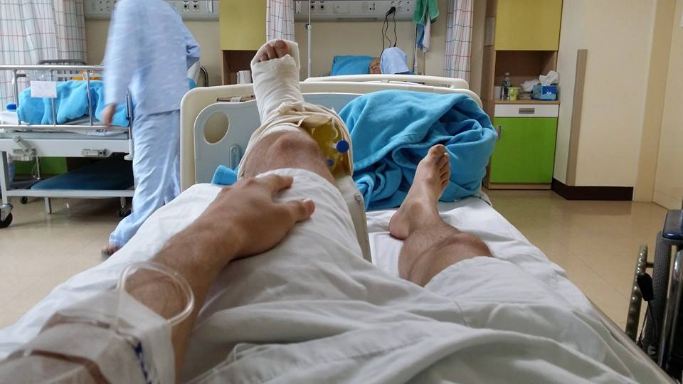 That Time I Broke My Ankle In Korea Teach English Abroad